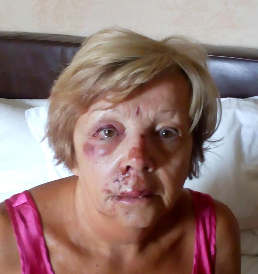 Janet Smith showing her injuries after hitting a pothole